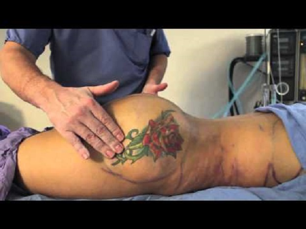 Que hacer que el pecho después de mammoplastiki ha bajado
